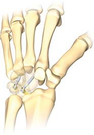 CarpalFIX Intraosseous Fusion Device