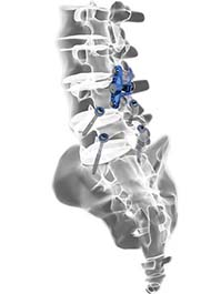 PrimaLOK™SP Interspinous Fusion System