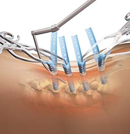 SERENGETI® Minimally Invasive Retractor System