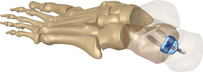 IO FIX TRIO™ CALCANEAL OSTEOTOMY DEVICE